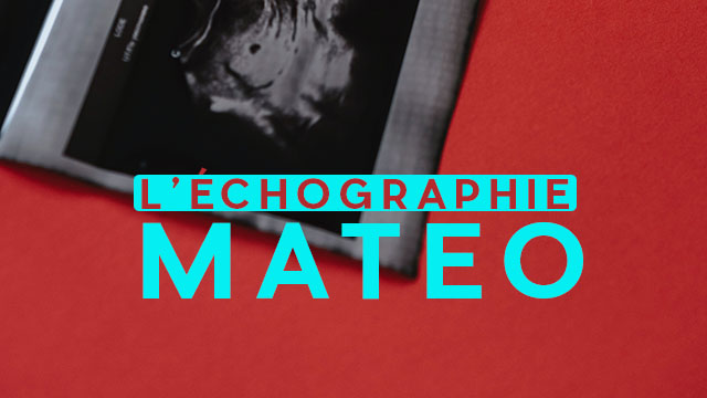 L'échographie de Mateo